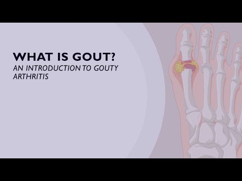 What Is Gout? An Introduction To Gouty Arthritis (1 Of 6)