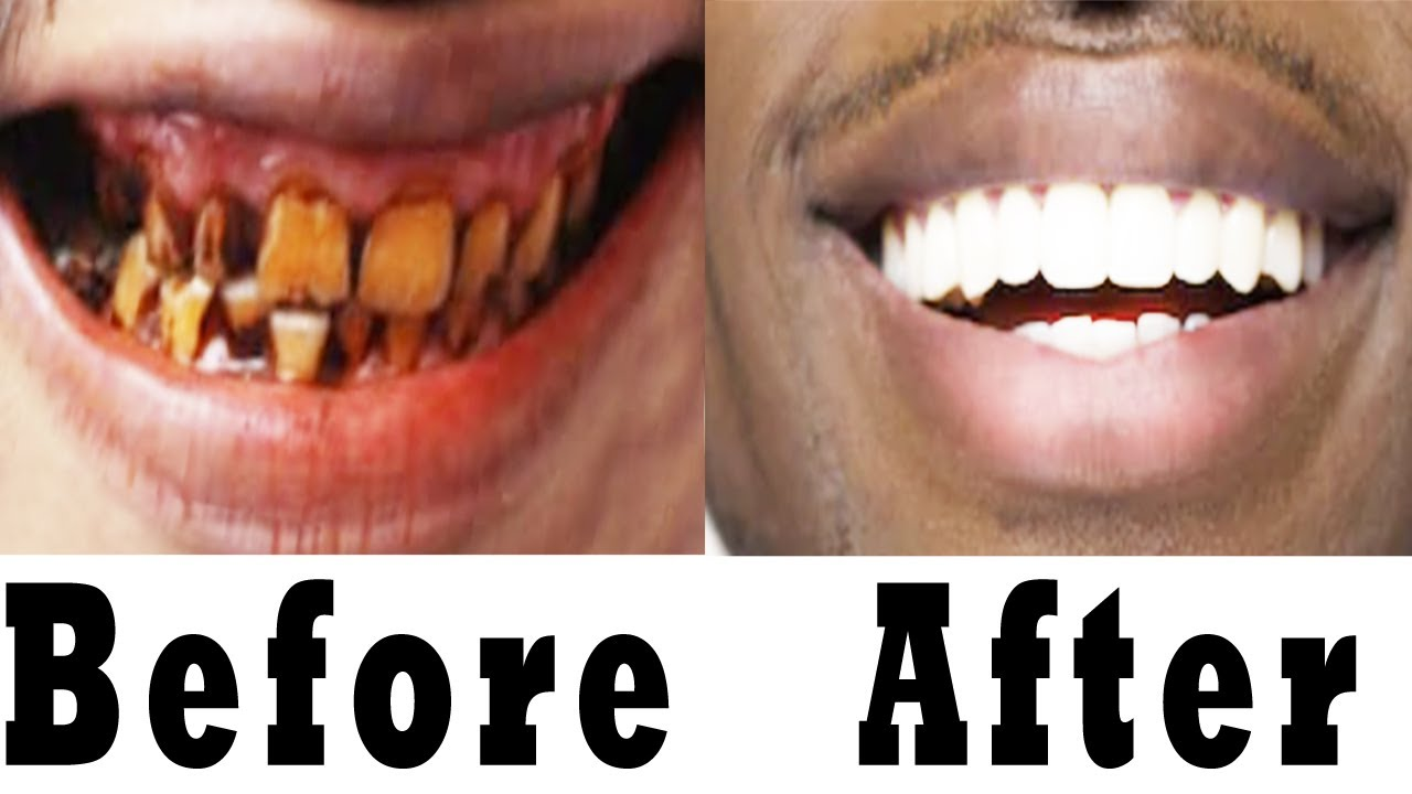 Teeth Whitening At Home ~ How To Whiten Your Yellow Teeth ...