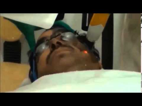 Skin Lightening and Brightening Laser Facial