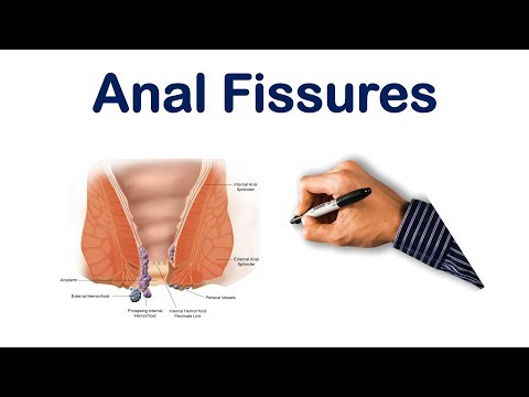 Anal Fissures  USMLE Step, NCLEX, COMLEX