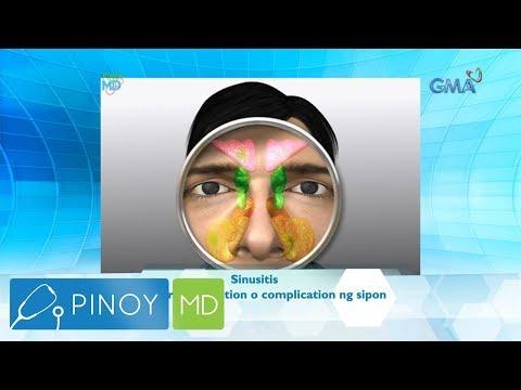 Pinoy MD: Ano ang dapat gawin kapag nahihirapan kang dumumi?