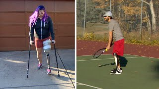 Amputees calling for better prosthetics funding