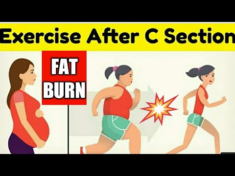 FAT BURNING EXERCISE TO DO AFTER C SECTION   HOW TO LOSE WEIGHT AFTER C SECTION