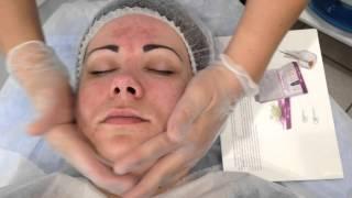 обучение косметология химический пилинг(, 2015-07-15T18:08:54.000Z)