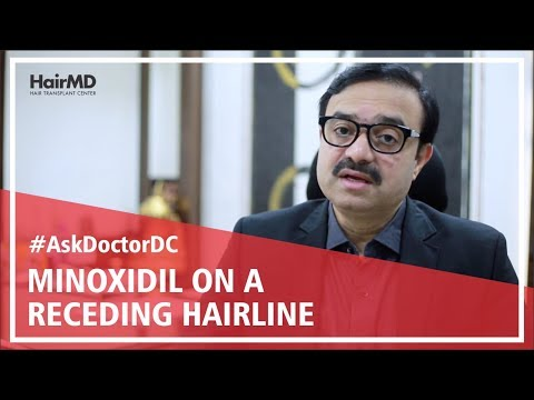Does Minoxidil Work on receding hairline - HairMD, Pune - 동영상