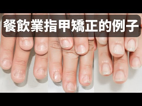 餐飲業指甲矯正的例子-22週變健康 90週變漂亮 解決咬指甲的困擾