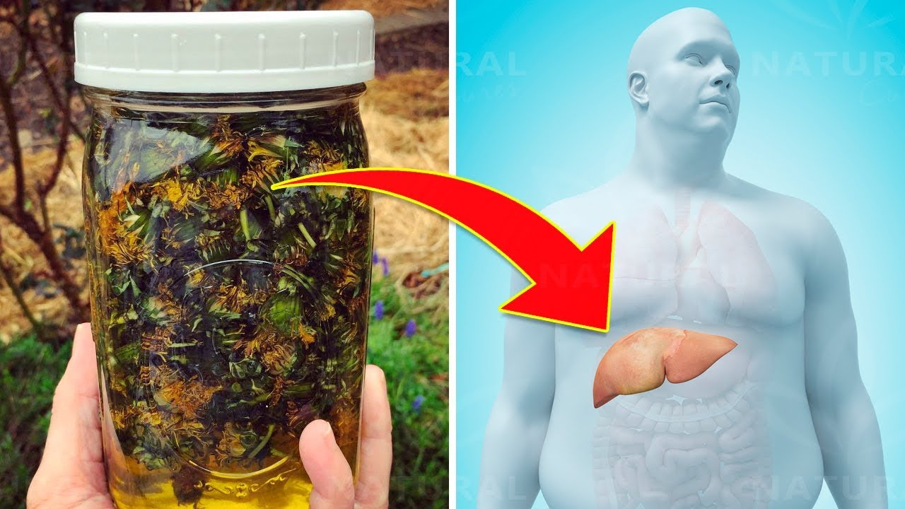 Do You Have a Fatty Liver? You Should Know These Herbs Then!