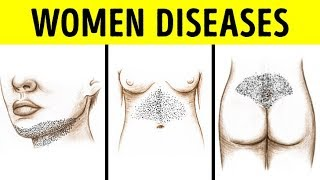 She discovered Hair Growing Over Her Lips And On Her Hips, Turns out She Has An Endocrine Problem