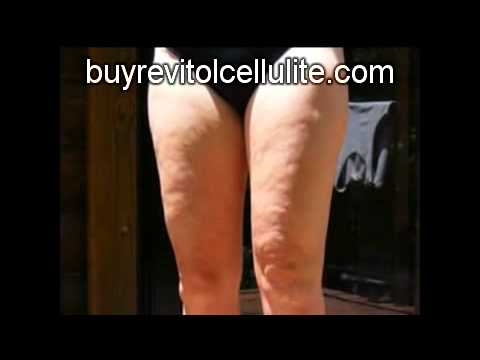 Cellulite Cure - Get rid of cellulite the natural way.