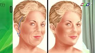 Trẻ hóa gương mặt bằng phương pháp căng da