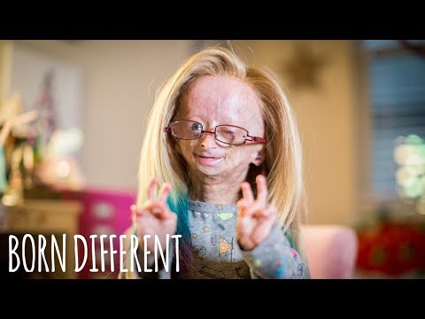Adalia Rose: The Girl Who Ages Too Fast | BORN DIFFERENT