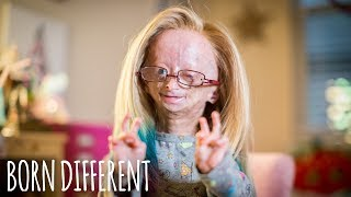 adalia rose the girl who ages too fast born different