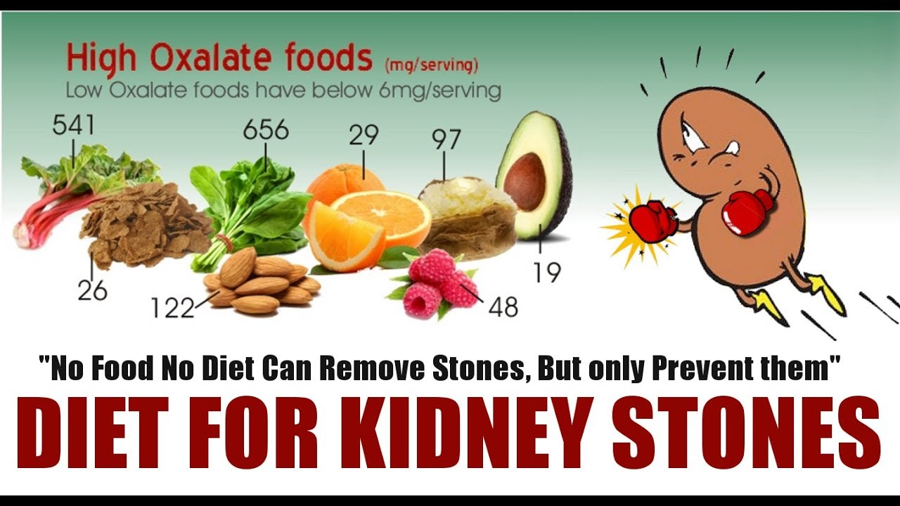 Rx Renal Stone 3 Eng How To Prevent Second Stone Avoid Only These Foods Dr Education Youtube