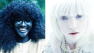 TOP 10 PEOPLE WITH UNIQUE SKIN COLORS