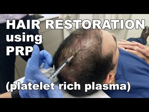 Scalp Hair Restoration using Platelet Rich Plasma - Lori Ward, CRNP | West End Plastic Surgery
