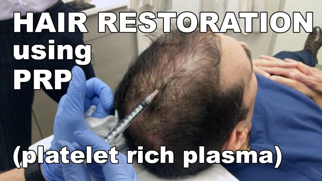Download Scalp Hair Restoration using Platelet Rich Plasma - Lori Ward, CRNP | West End Plastic Surgery