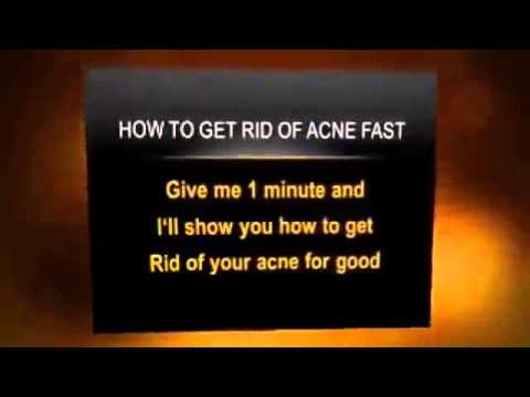 top-5-ways-how-to-get-rid-of-acne-scars-treatment-acne