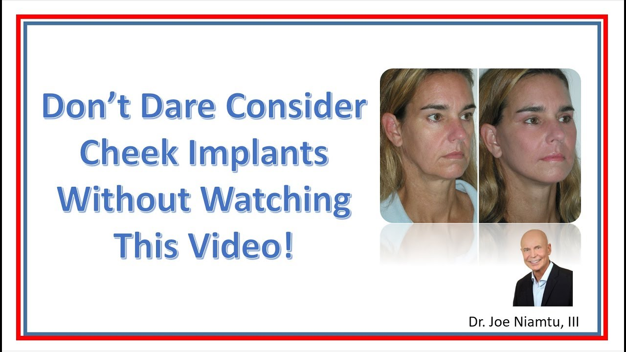 Don't Dare Have Cheek Implants without Watching This Video