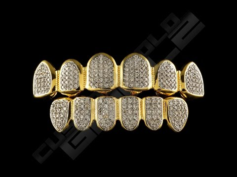 Custom Gold Grillz- Iced Out Diamond Teeth Grillz