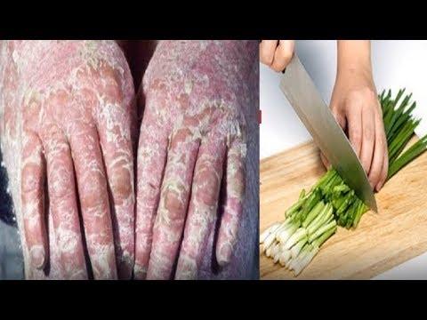 Thổi bay viêm da cơ địa, vảy nến, á sừng lâu năm chỉ với 1 nắm rau có ngay trong căn bếp nhà bạn