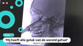 Wow: jongen overleeft ongeluk met mes in zijn hoofd