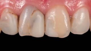 Препарирование зубов. Протезирование зубов коронкой