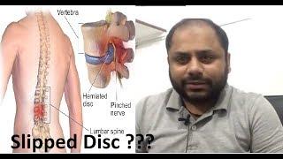 Slipped disc treatment 100 percent (Hindi)