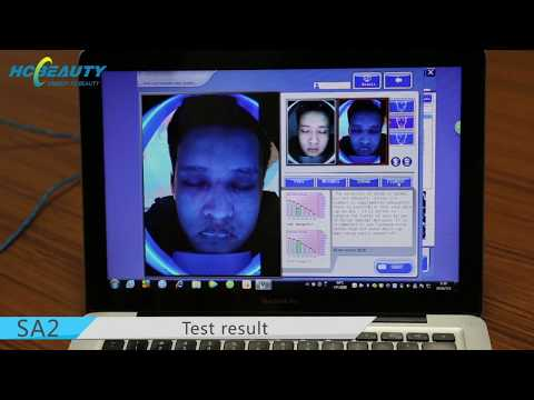 How Does Our Facial Skin Analyzer Machine Work?