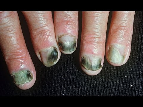 How to Get Rid of Fingernail Fungus Fast & Naturally at Home - YouTube