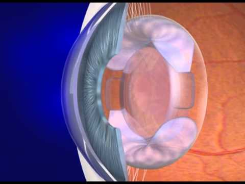 Accommodating intraocular lenses