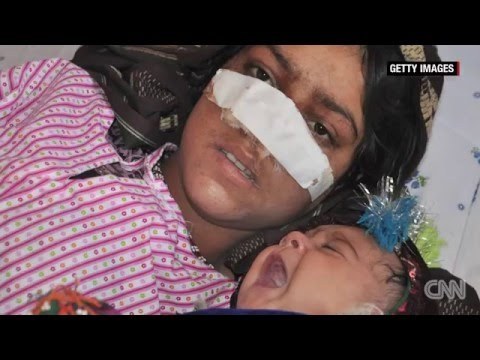 Afghan Woman&39;s Nose Cut Off By Husband