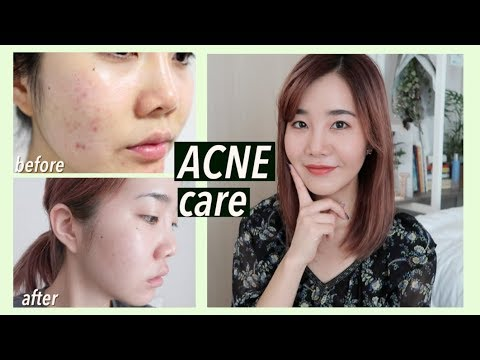 How I Got Rid Of Acne Scars Hyperpigmentation With Korean Skincare