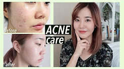hqdefault - Best Korean Skin Care Product For Acne