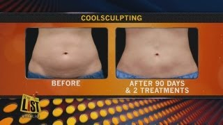 Freeze off those fat cells with cryolipolysis