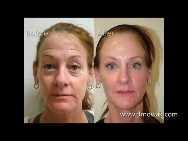 Kathie Non-Surgical Facial Rejuvenation Testimonial  - Nowak Aesthetics