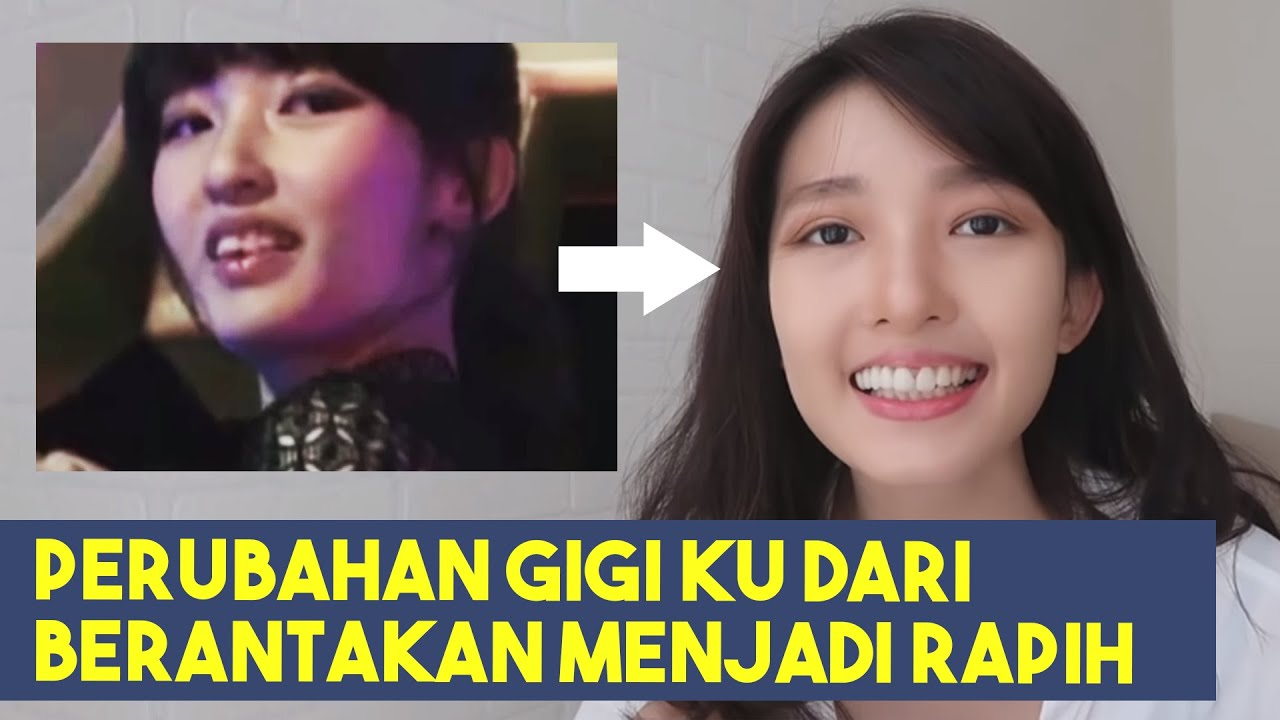Merapikan Gigi Tanpa Behel Cindy Thefannie Youtube Perapi Teeth Retainer