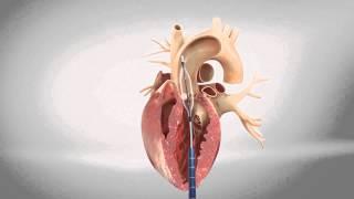 TAVI transapical - Transcatheter Aortic Heart Valve - 3D Animation Medizin