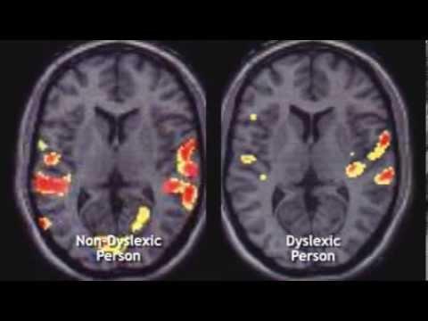 Headstrong Nation: Inside the Hidden World of Dyslexia & ADHD