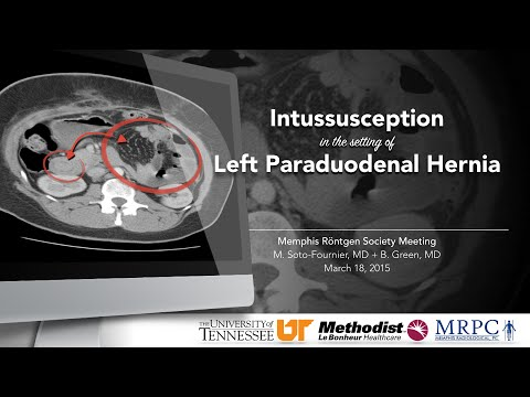Case Report: Intussusception in the setting of Left Paraduodenal Hernia thumbnail
