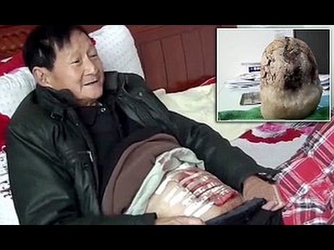 Chinese man has enormous gallstone the size of a MELON removed after it went unnoticed for decades