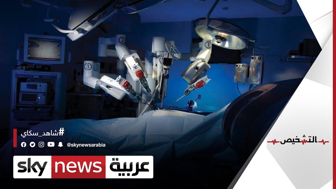 الجراحة الروبوتية.. كيف نجح الروبوت دافنشي بأصعب العمليات؟  | #التشخيص  - نشر قبل 3 ساعة