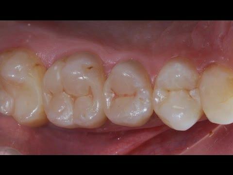 эндодонтическое отбеливание зуба