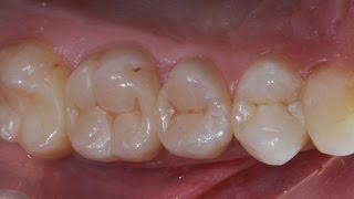 Реставрация и эндодонтическое лечение боковых зубов. Resto & Endo of posterior teeth(, 2014-11-09T21:45:11.000Z)