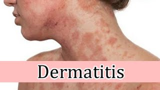 Dermatitis venosa de crema por estasis