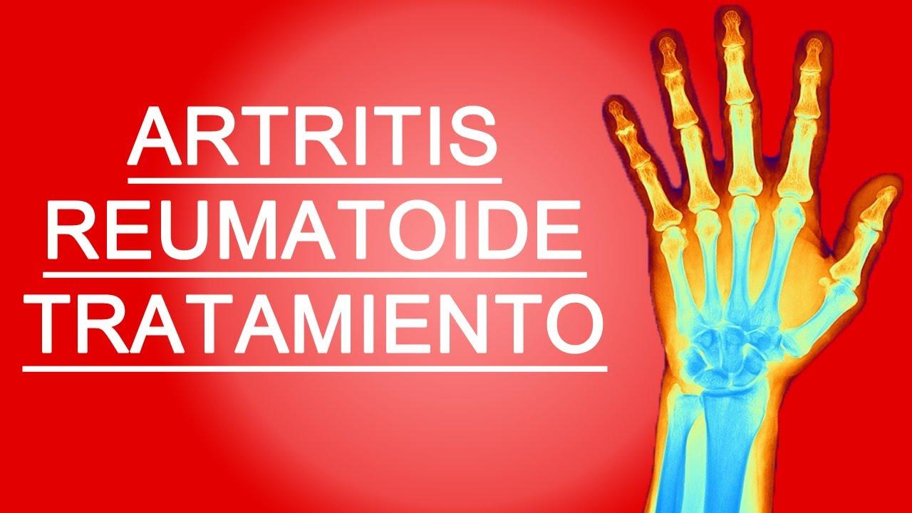 como eliminar la artritis de forma natural