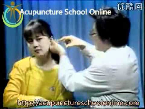 Acupuncture Video Course Lesson 22 – Auricular Diagnosis And Treatment