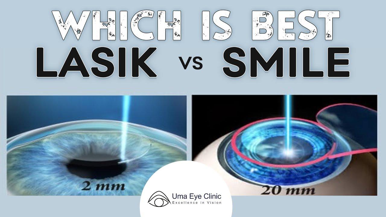 Laser Eye Surgery Lasik Vs Smile Dr Arulmozhi Varman Uma Eye Clinic Youtube