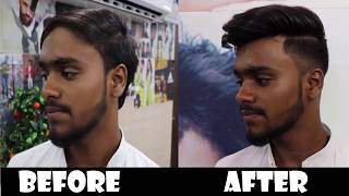a non surgical hair bonding system for men AFTER and BEFORE in DELHI  RIZY 9582581323