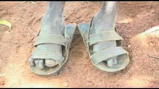Leprosy in Sudan