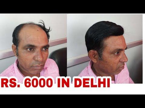 Hair weaving cost hair weaving price in delhi rs 5000 www hair weaving cost hair weaving price in delhi rs 5000 rituhairwigs 9990115900 pmusecretfo Choice Image